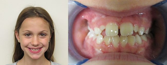 Intraoral Anterior Before