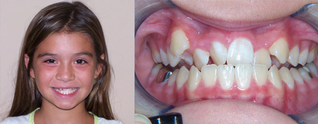 Anterior Crossbite Before