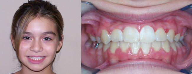 Anterior Crossbite After